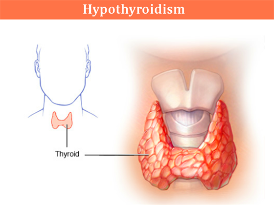 Hypothyroidism Symptoms Diet Diagnosis Causes Treatment Byjus