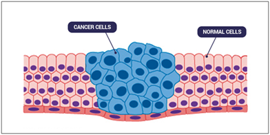 cancer cells and normal cells