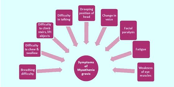 Myasthenia Gravis Symptoms