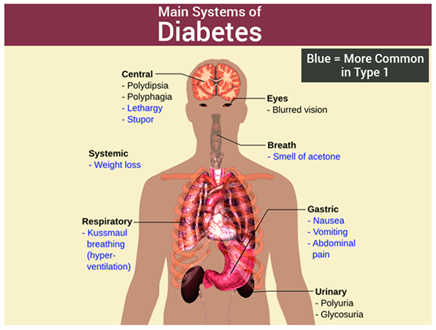 Symptoms of Diabetes Mellitus