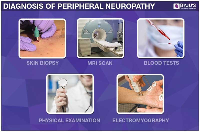 Diagnosis of Peripheral Neuropathy