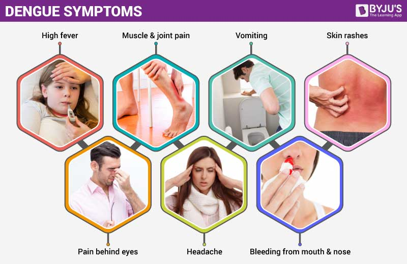 Symptoms of Dengue Fever