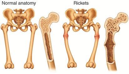 Normal Anatomy & Rickets