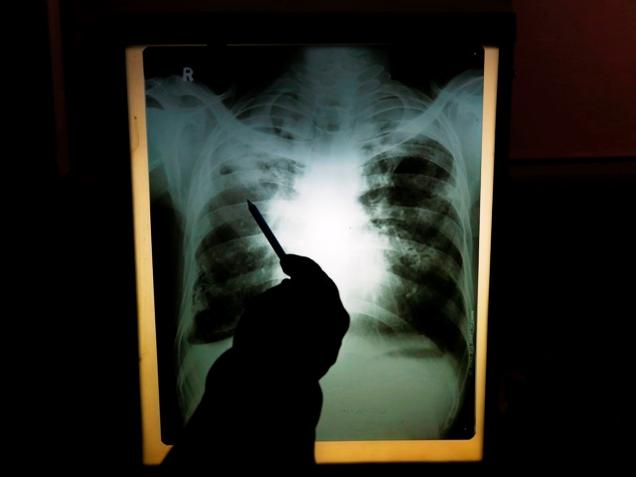 The gulf in tuberculosis care
