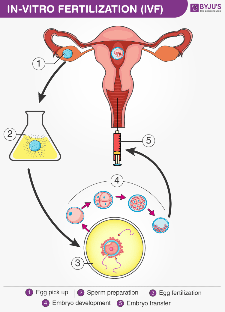 Diagram of in-vitro fertilization