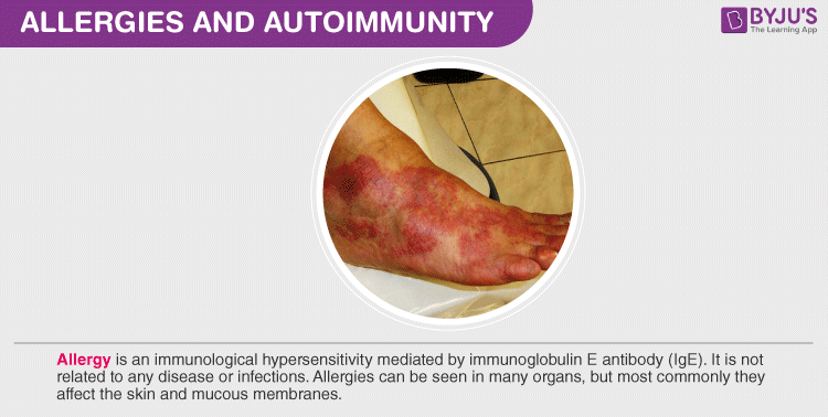 Allergies and Autoimmunity