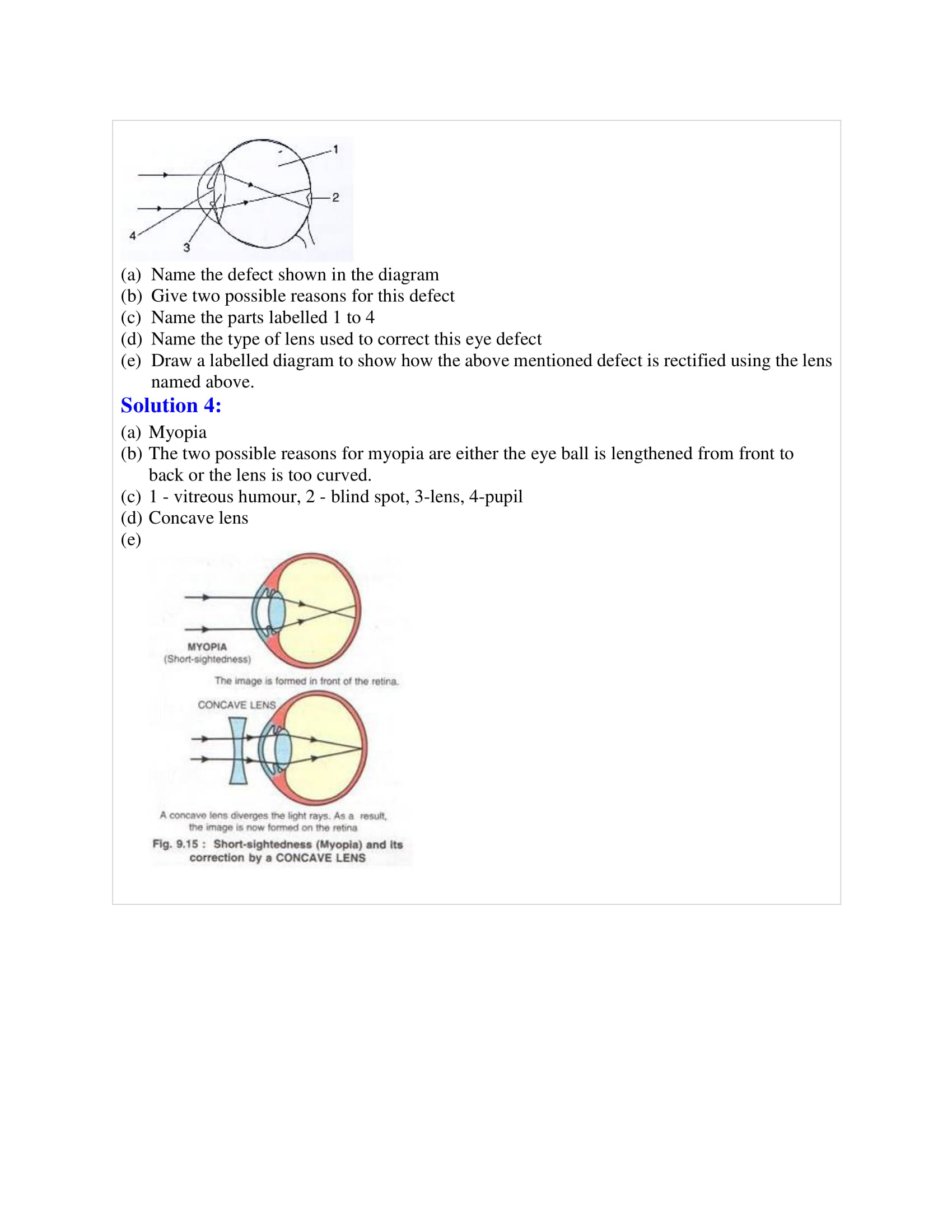 icse-selina-biology-solutions-class-10-chapter-8-the-nervous-system-22