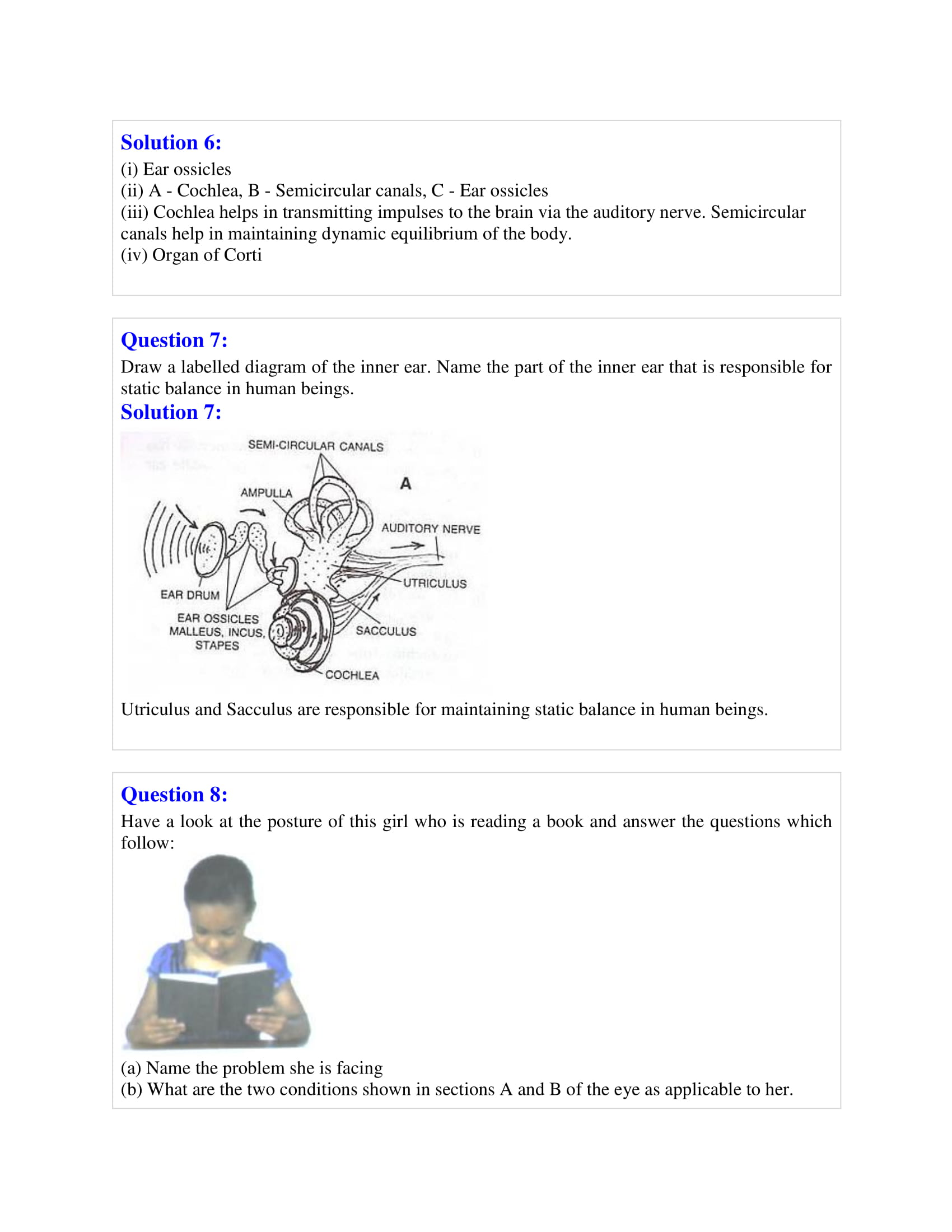 icse-selina-biology-solutions-class-10-chapter-8-the-nervous-system-24