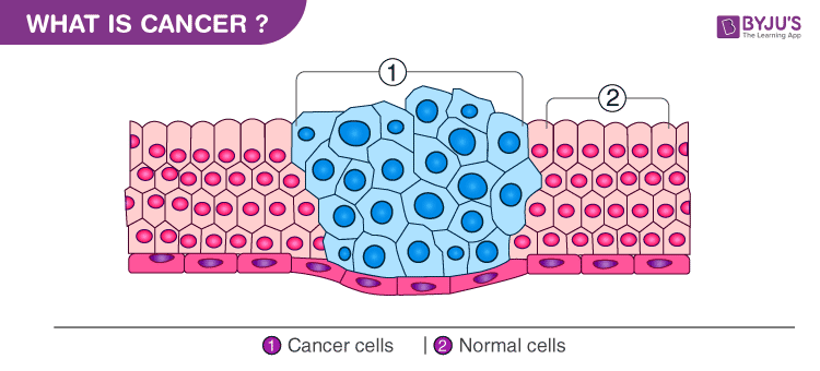 Cancer - Types, Causes, Diagnosis and Treatment of Cancer