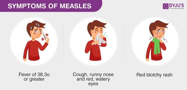 Symptoms of Measles