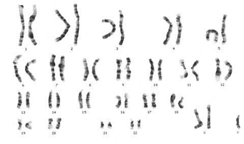Klinefelter's syndrome karyotype