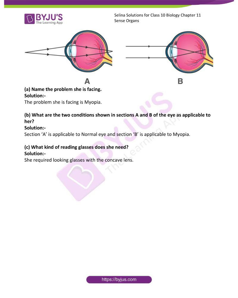 Selina Solutions For Class 10 Biology Chapter 11 Sense Organs 18