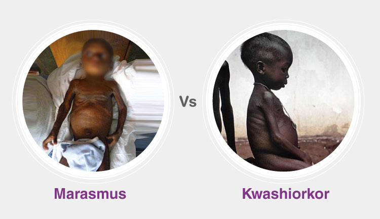 Differences between Kwashiorkor and Marasmus
