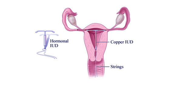 Structure of an Intrauterine Device