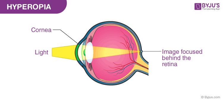 Hyperopia látáskorrekció, Hyperopia 7 dioptria