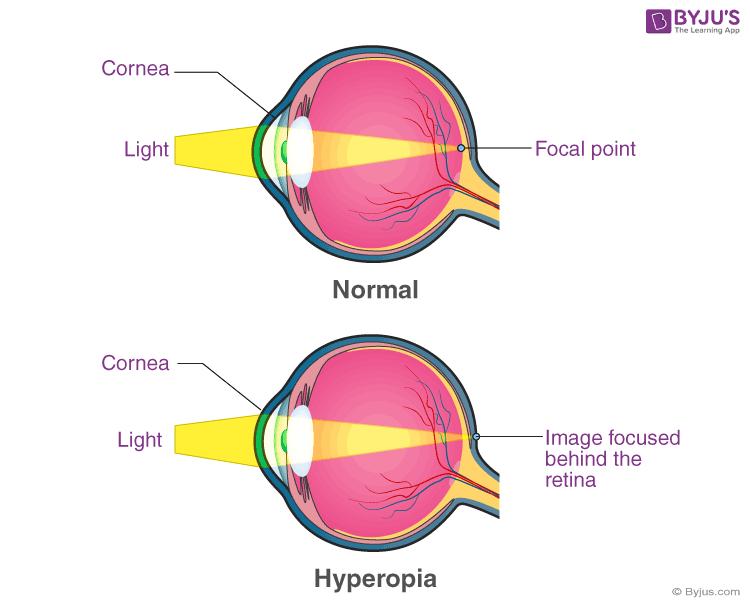 lehetséges-e a látás helyreállítása műtét után? hyperopia 5 éves korban