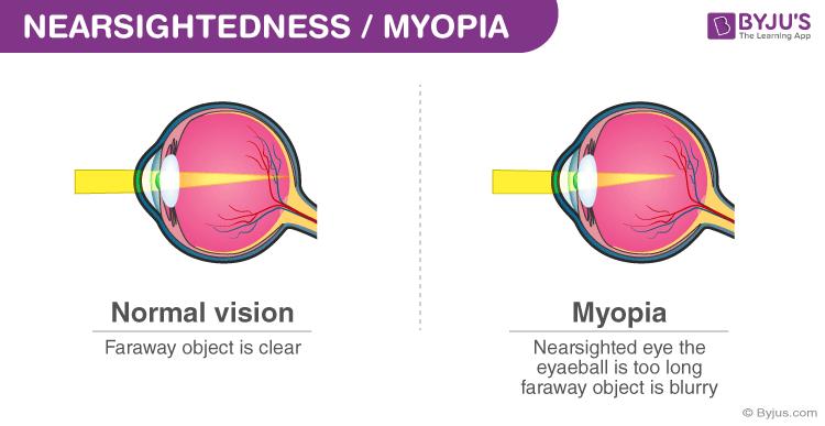enciclopedie de viziune refacerea chirurgiei vederii de la câți ani