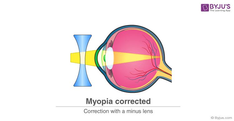 How to correctMyopia?