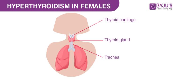 Hyperthyroidism in Females