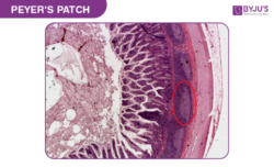 Peyers Patches